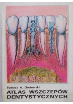 Atlas wszczepów dentystycznych