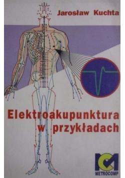 Elektroakupunktura w przykładach
