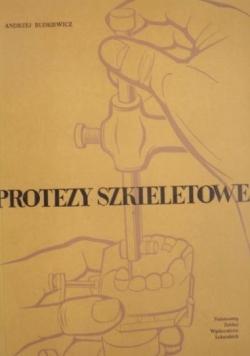 Protezy szkieletowe