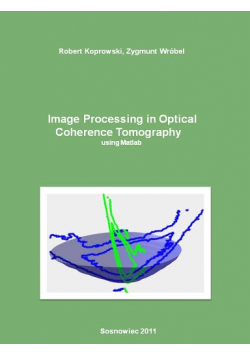 Image Processing in Optical Coherence Tomography