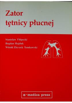 Zator tętnicy płucnej