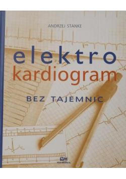 Elektrokardiogram bez tajemnic
