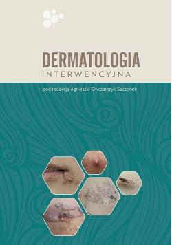 Dermatologia interwencyjna