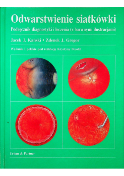 Odwarstwienie siatkówki Podręcznik diagnostyki i leczenia