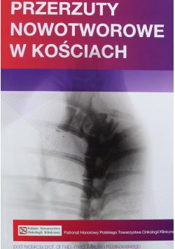 Przerzuty nowotworowe w kościach