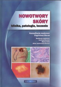 Nowotwory skóry klinika patologia leczenie